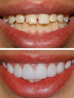 Porcelain Veneers from your Tucson dentists