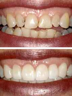 Full Mouth Rehab Before and After